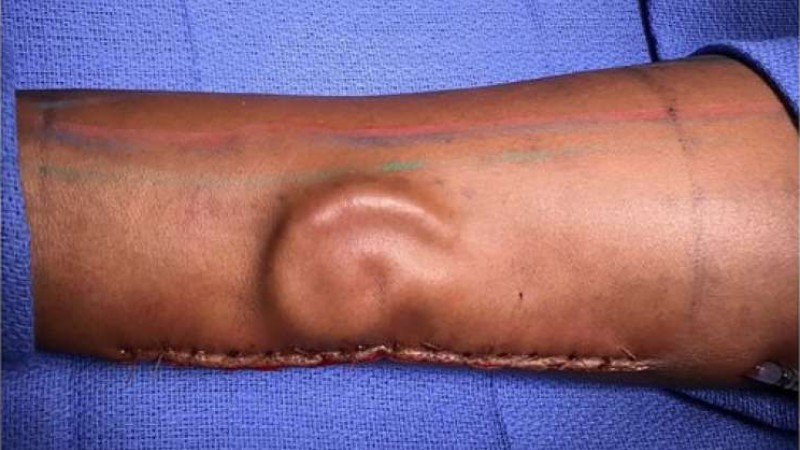 Cartilage growing in a patient's forearm as part of a total ear reconstruction performed at William Beaumont Army Medical Center. (Credit: U.S. Army)