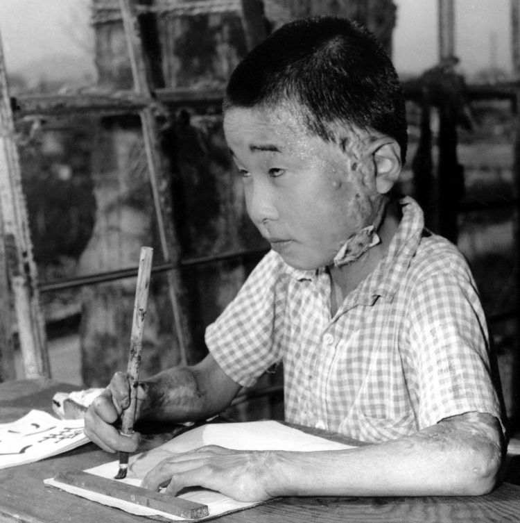 A young school child pictured in 1946 affected by the Hiroshima Atomic Bombings Credit: UPI/UPI/PA Images